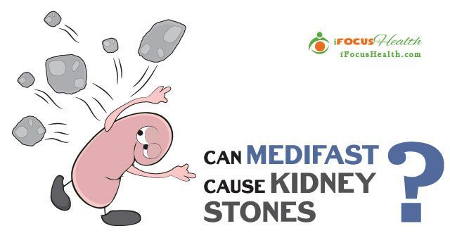 can medifast cause kidney stones