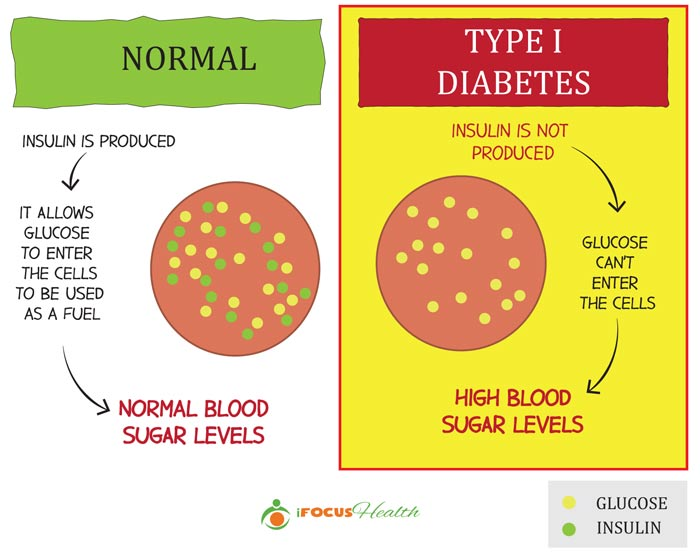 type 1 diabetes definition