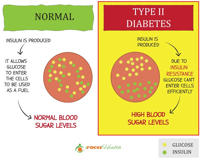 type 2 diabetes definition